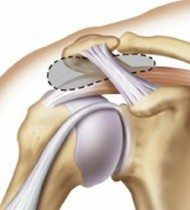 impingement-syndrome-1