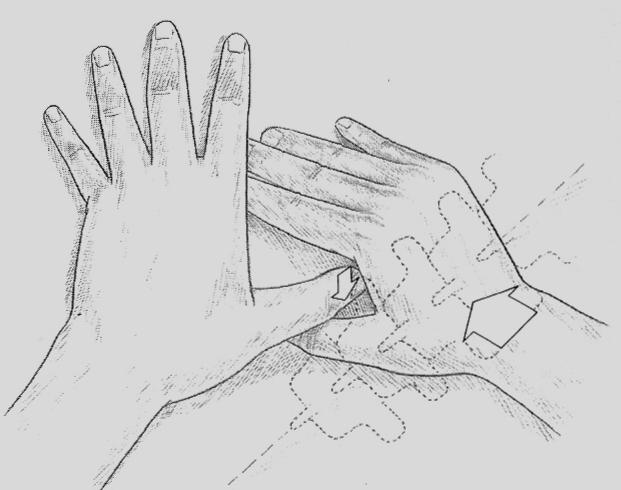 Induration Technique
